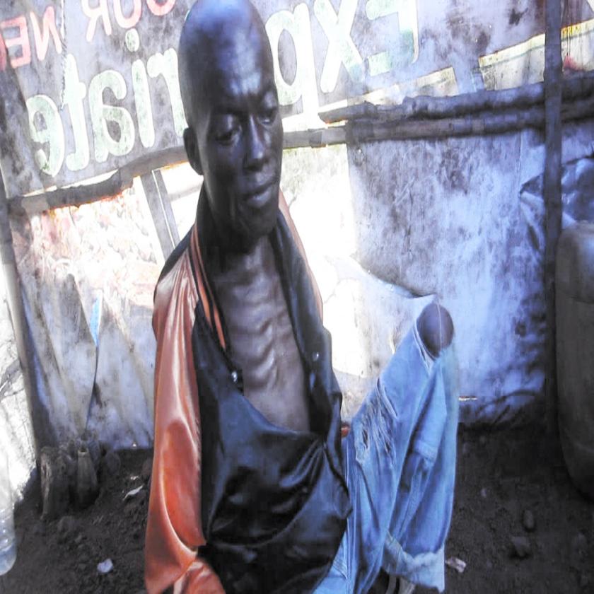 Polio in Sierra Leone